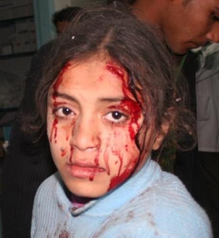 Masacre de Gaza